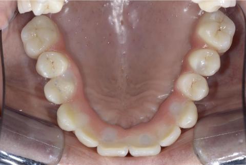 protesi toronto avvitata in bocca