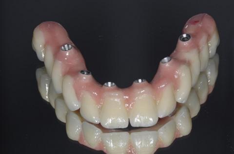 protesi toronto su 6 impianti finita