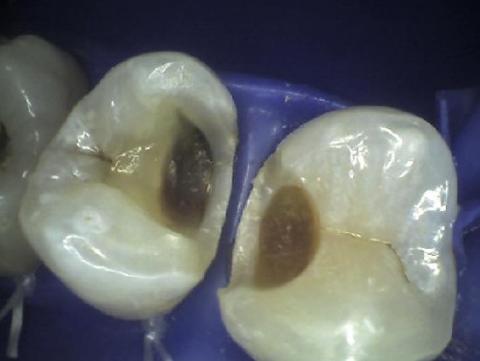 Pulizia delle cavità cariose